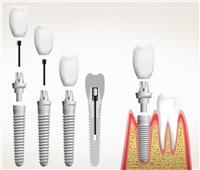 استشاري يوضح أعراض وعلامات فشل زراعة الأسنان