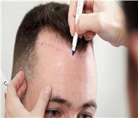 استشاري تجميل يشرح خطوات زراعة الشعر بـ«الاقتطاف»