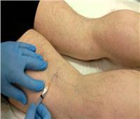 تعرف على .. طريقة علاج انسداد شرايين الساق