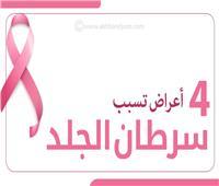 إنفوجراف| 4 أعراض تسبب سرطان الجلد