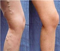 استشاري يكشف عن تقنية فعالة وسريعة لعلاج دوالي الساقين