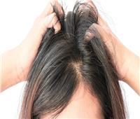استشاري: عمليات زراعة الشعر ليست قاصرة على الرجال فقط