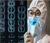 وفاة 71 حالة جديدة بفيروس كورونا في الصين