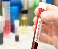 20 مليون دولار منح لتمويل تجارب طبية لعلاج «كورونا»