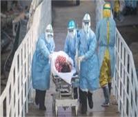 حالتا وفاة بفيروس كورونا في (موسكو ) والإصابات 4731 إصابة