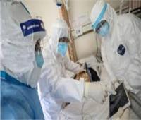 روسيا: 48 مريضا بكورونا في العاصمة تماثلوا للشفاء خلال الساعات الـ 24 الماضية