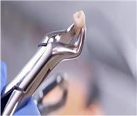 هل خلع الأسنان يبطل الصوم؟.. «الإفتاء» تجيب