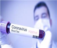فيديو| المستشفيات الجامعية: مسحات كورونا جزء من بروتوكول اكتشاف الإصابة