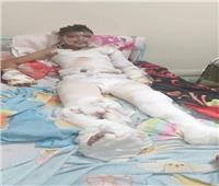 أب بالإسماعيلية يناشد وزيرة الصحة توفير عناية حروق لنجله