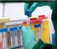اكتشاف دواء رخيص الثمن لعلاج مرضى فيروس كورونا في بريطانيا