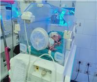 جراحة ناجحة لطفلة رضيعة بمستشفى الحسينية المركزي