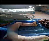 ٣ شباب من مركز المحلة يحرقون طفل ٦سنوات بسبب خلاف مع والده