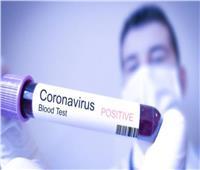 فيروس كورونا يعود للظهور في بلدٍ أوروبيٍ تعافى سابقًا من الوباء