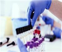 فيديو| هل أنتجت مصر علاج لفيروس كورونا؟.. اللجنة العلمية تجيب