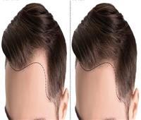 زراعة الشعر بالليزر.. عملية آمنة ولكن بشروط