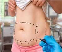 جراح تجميل: هكذا تتحقق عوامل الأمان لـ«شفط الدهون»