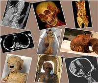 حقيقة مومياء «المرأة الصارخة».. الأشعة المقطعية تكشف سبب وفاتها