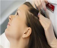 استشاري تجميل: هذه الأمراض تحتاج إجراءات استثنائية لعملية زراعة الشعر