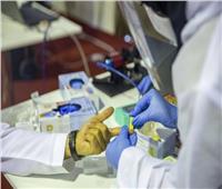 وزير الصحة الكويتي: شفاء 587 حالة مصابة بفيروس (كورونا)