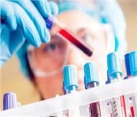 «الطيران»: المصريون غير مطالبين بتحليل «PCR».. والتطبيق 15 أغسطس