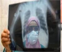 فيديو| «الصحة» عن إصابات كورونا في مصر: نحن في فترة الترقب والحذر