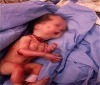 حالة ولادة نادرة لطفل مذبوح الرقبة في الأقصر