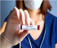 إصابات فيروس كورونا حول العالم تكسر حاجز الـ«31 مليونًا»