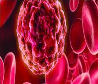 ماذا يحدث في جسمك عندما ترتفع الصفائح الدموية؟