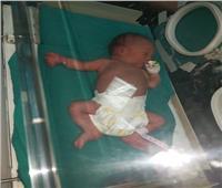 بالصور| مستشفى المنيرة ينقذ طفلا عمره 3 أيام بجراحة عاجلة