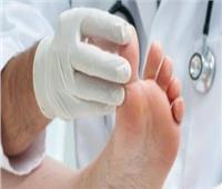 جراح أوعية دموية: ينبغي على مرضى السكري ارتداء أحذية واسعة ومريحة