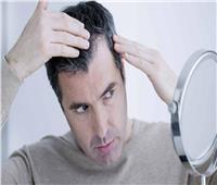 3 أسباب وراء غزو الشعر الأبيض للشباب مبكرًا