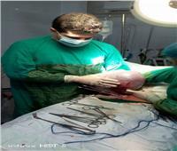 صور| استئصال ورم وزنه 15 كيلو من طفلة في بني سويف