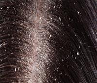 كيف تتخلصين من قشرة الشعر بعناصر «طبيعية» ؟