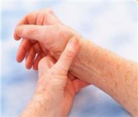في اليوم العالمي للروماتيزم..تعرف على أنواعه وأعراضه