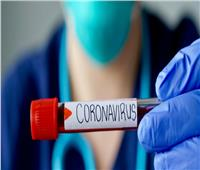 كولومبيا.. ثاني دولة في أمريكااللاتينية تصل لمليون إصابة بكورونا