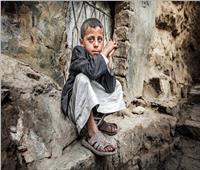 الأمم المتحدة: سوء تغذية الأطفال يرتفع لمستويات جديدة في اليمن
