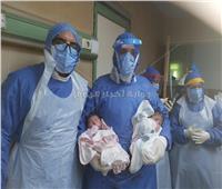 ولادة توأم لسيدة مصابة بفيروس كورونا بمستشفيات جامعة المنصورة