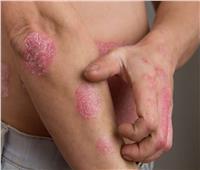10 مواد طبيعية لعلاج الصدفية.. أبرزها «الكركم»