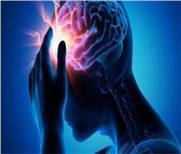 «الصحة»: 5 أشياء تقي من الإصابة بالسكتة الدماغية