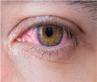 احذر| «العين الوردية».. مرض خطير يصيب الأطفال