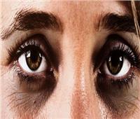 ١٠ وصفات طبيعية لعلاج الهالات السوداء في المنزل