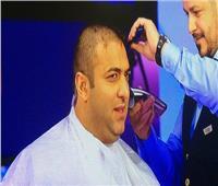 ميدو يستعد لحلاقة شعره «زيرو» مرة أخرى.. تعرف على السبب