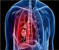 مع زيادة إصابات كورونا  الصحة تقدم 4 معلومات عن الالتهاب الرئوي