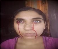«دموع دم»  هل الجن السبب؟ مبروك عطية يعترض.. ومعالج بالقرآن يرد