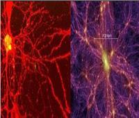 دراسة تحدد أوجه التشابه بين دماغ الإنسان والكون