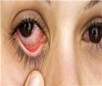 6 نصائح لعلاج «جفاف العين»..تعرف عليها