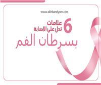 إنفوجراف| 6 علامات تدل على الإصابة بـ«سرطان الفم»