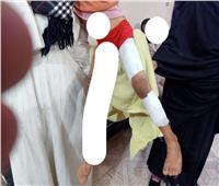 عامل يعذب طفلته بالحرق بجريد النخل في قنا