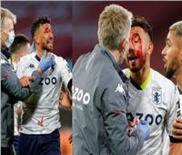 تريزيجيه يتعرض لإصابة قوية خلال مباراة أستون فيلا ووست هام.. صور