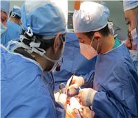 نجاح استئصال فص من الكبد لمريض تحت مظلة التأمين الصحي ببورسعيد